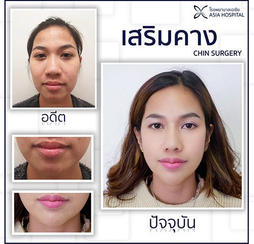 เสริมคาง_chin_surgery